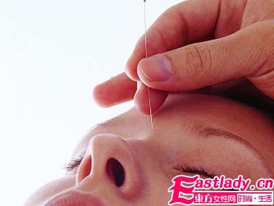 针灸祛斑方法的原理和功效