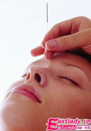 什么是针刺美容 有效吗