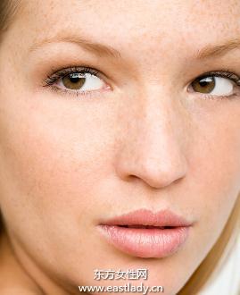 皮肤斑点形成的原因