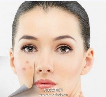 痊疮皮肤的饮食调理法