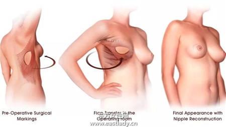 乳腺癌患者乳房重建 重塑女人魅力