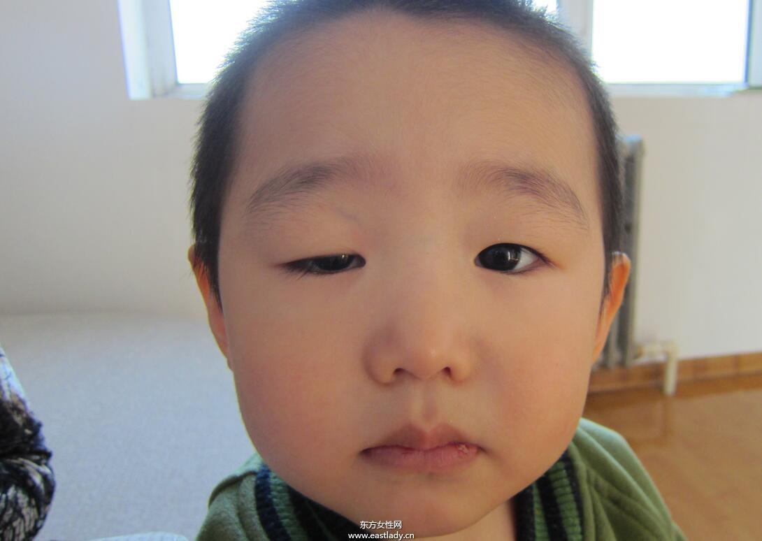 上眼皮突然下垂怎么办 这可能是疾病信号