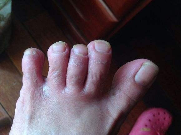 如何治疗香港脚