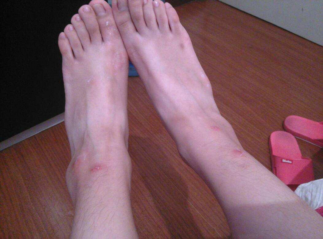 脚上长水泡怎么办 几大禁忌你必须知道才能快速的康复
