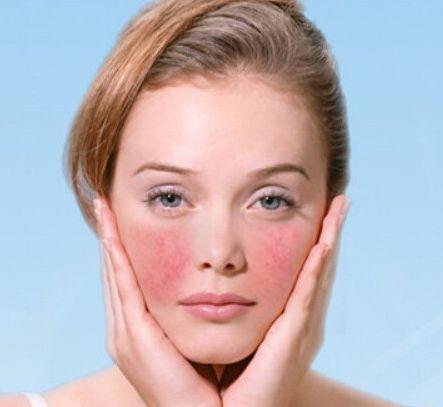 怎么淡化脸上的红血丝几种简单的方法让你轻松摆脱红血丝