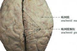 脑干梗塞的饮食禁忌 脑干梗塞吃什么好