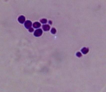 白色念珠菌病的症状以及治疗方法