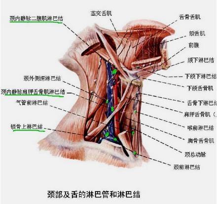颈部淋巴结治疗 这些方法能彻底治疗