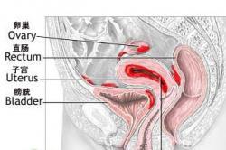 肛门胀痛的原因和治疗方法 看看你了解不