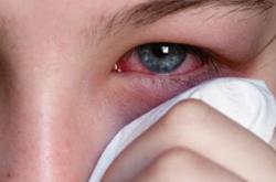 结膜炎症状 导致结膜炎的原因