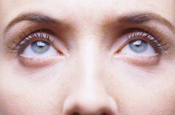 眼袋是怎么形成的 4招教你