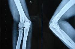 骨折愈合时间需要多久 愈合康复训练