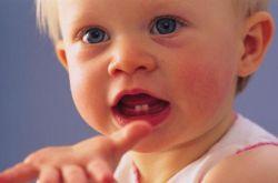 宝宝长牙顺序及时间 长牙发烧妈妈需留心
