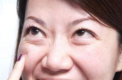 怎么去黑眼圈和眼袋 消除黑眼圈眼袋这么做就够了