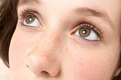 如何有效去除色斑黄褐斑