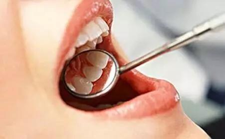 女子整条舌头都要切掉 只因忽略这黄豆大小的东
