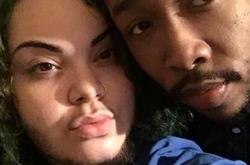 24岁女孩脸上长满了胡子 男友竟支持她留住胡子